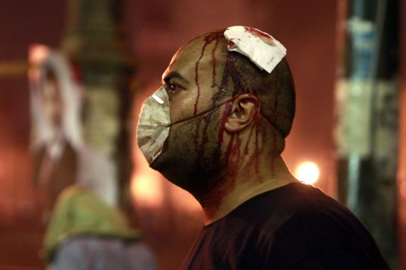A Morsi supporter injured by Egyptian riot police in Cairo