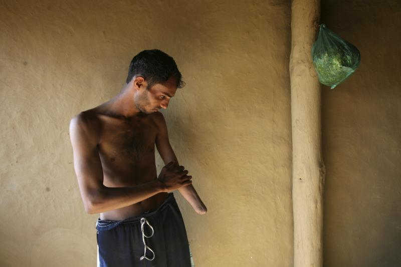 Mushtaq Ahmed, 24, who lost his left arm in a landmine blast in 1995 while grazing his goats near the Line of Control (LoC) between India and Pakistan, wipes his body after taking a bath inside his home at Jhangar village, 150 km (93 miles) northwest of J